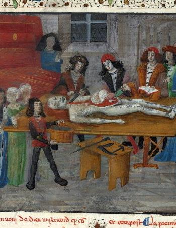 Dissection par Guy de Chauliac